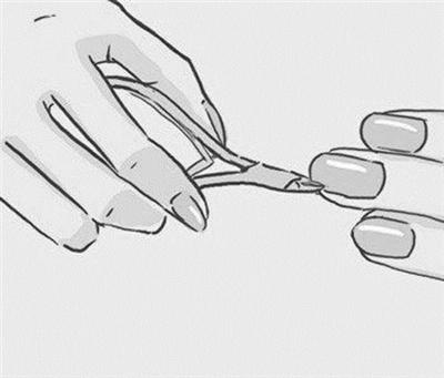 包扎手指尖图解步骤